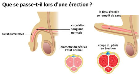 troubles de l erection - eaacasagrande - 1